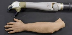 Modern Prosthetic Arm